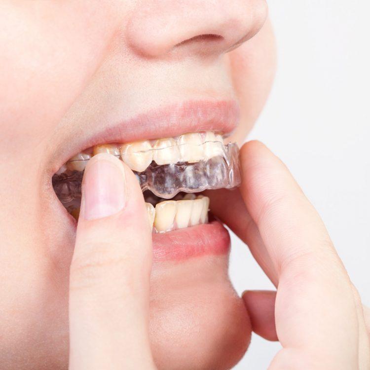teeth-straigtening